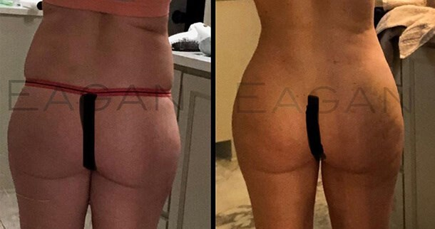 E-Curve Before and After Picture