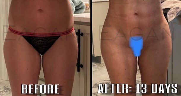 Dr. Eagan Before and After Picture
